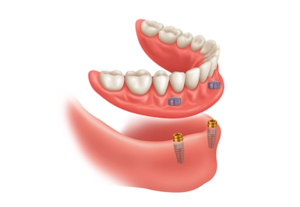 snap in denture implants
