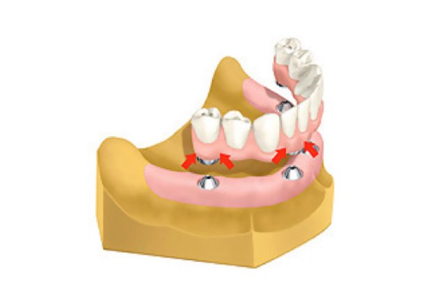 snap on implant dentures