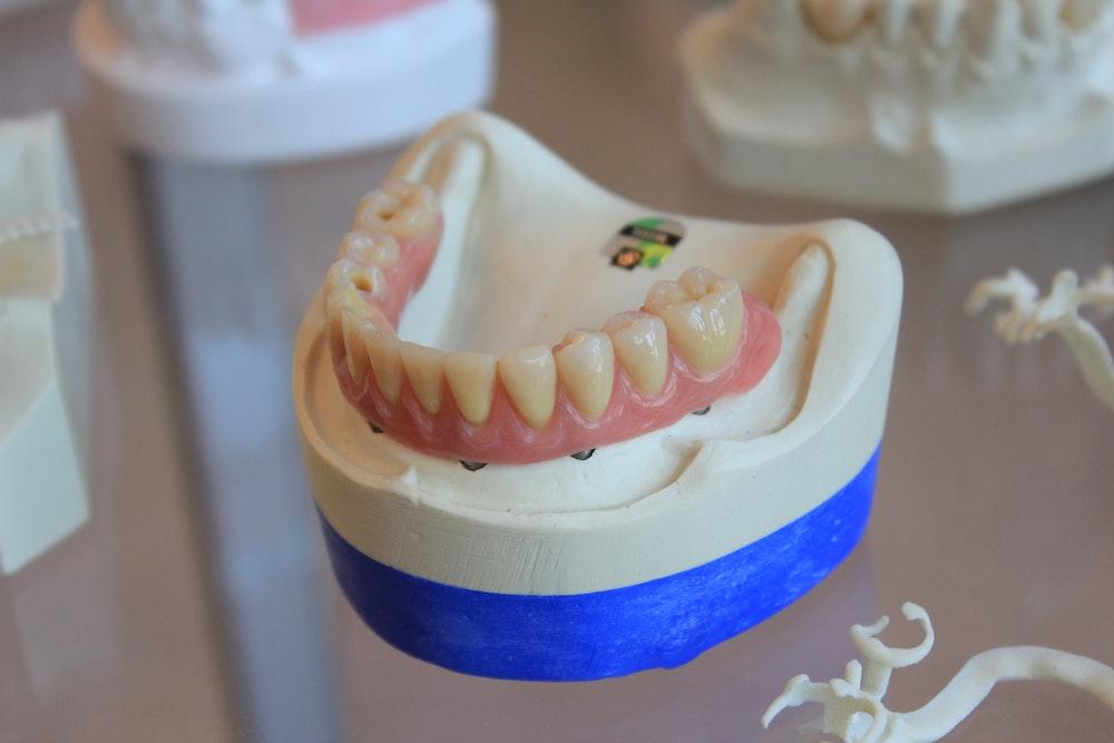 Easy Ways to Remove Denture Adhesive