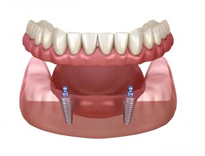 implant-retained vs implant-supported dentures