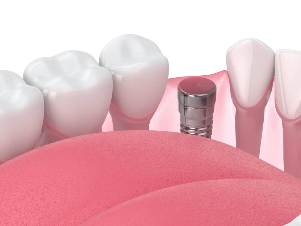 implant retained dentures cost