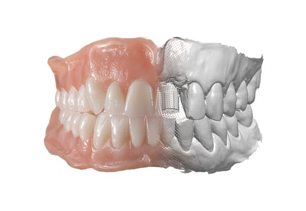 digital denture
