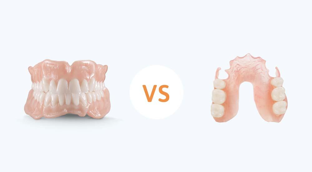 Full Dentures vs Partial Dentures
