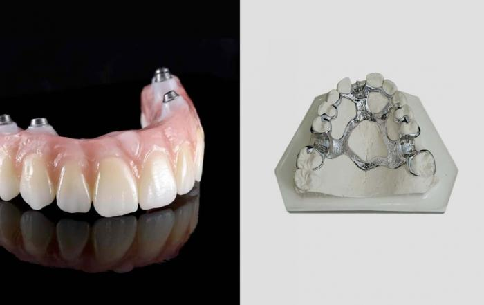 Implant Denture vs Partial Denture