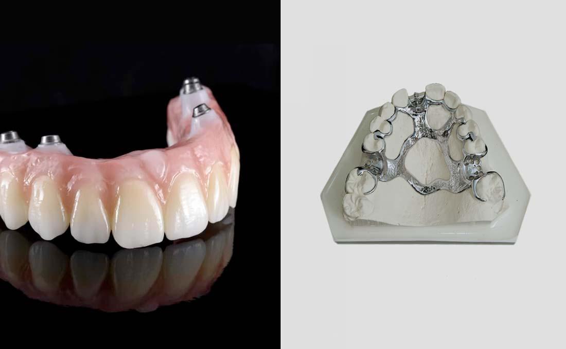 Implant Denture vs Partial Denture