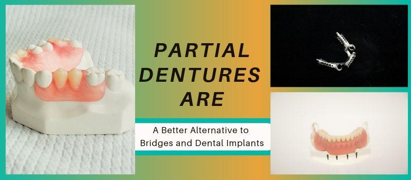 partials vs implants and bridges