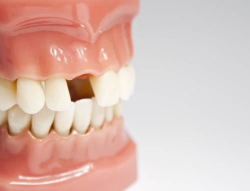 Options for Temporary Tooth Replacement